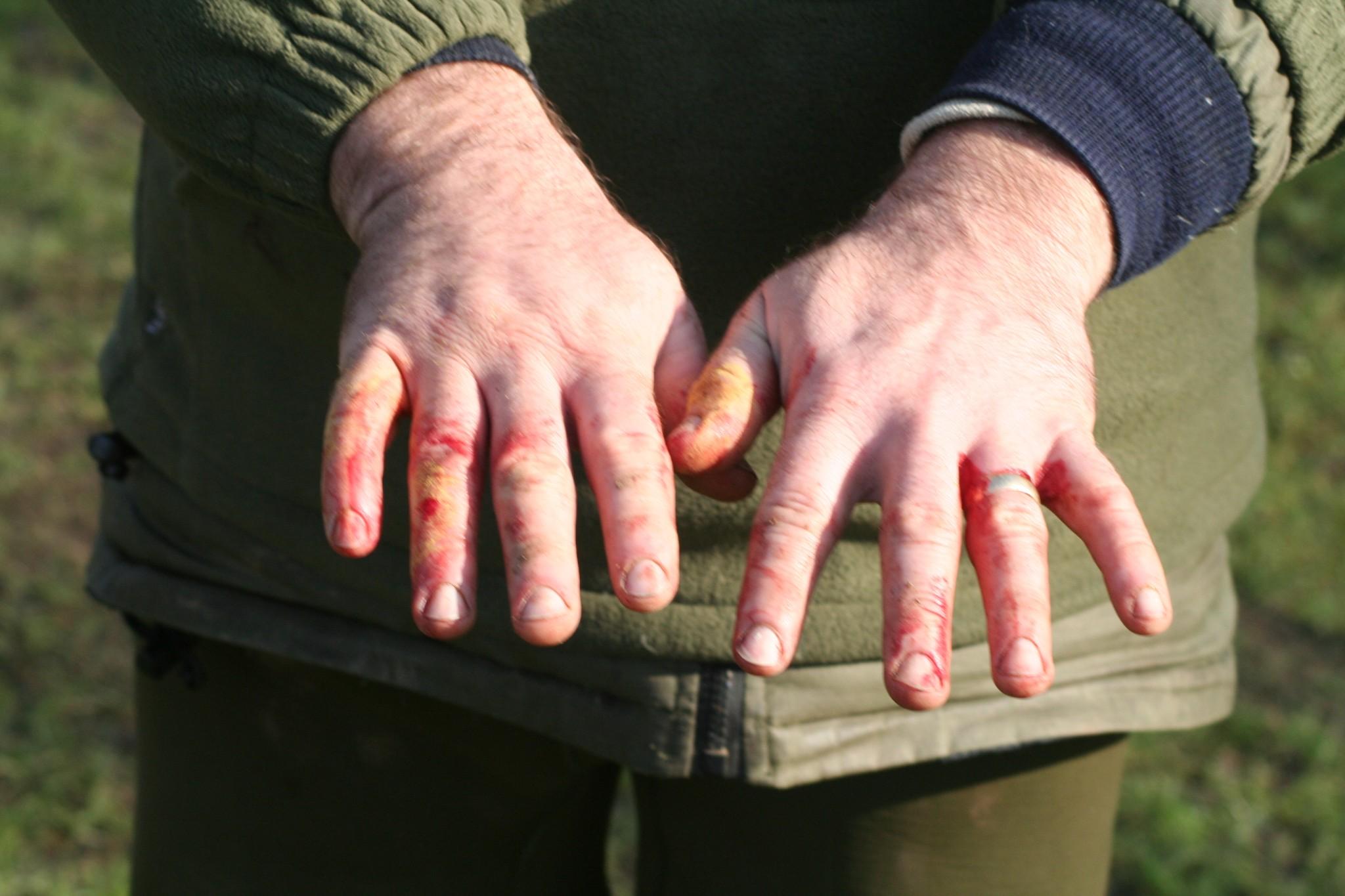 Lampreys attack humans